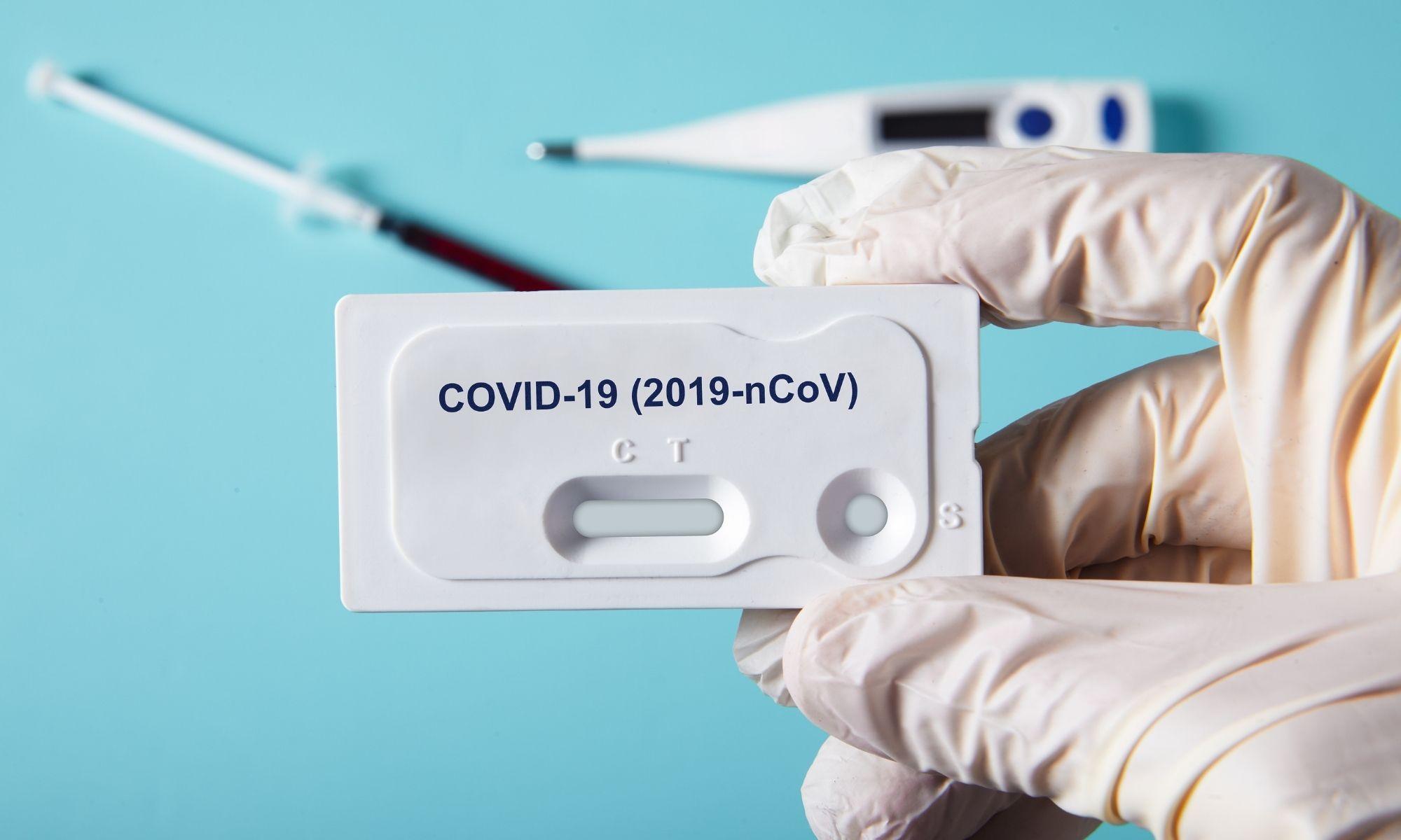 Comment les tests anti covid à l'étranger sont remboursés